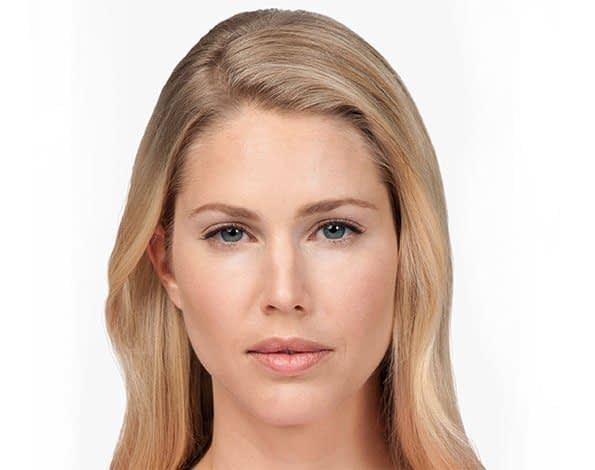 Check Out The Amazing After Results - Facial Fillers