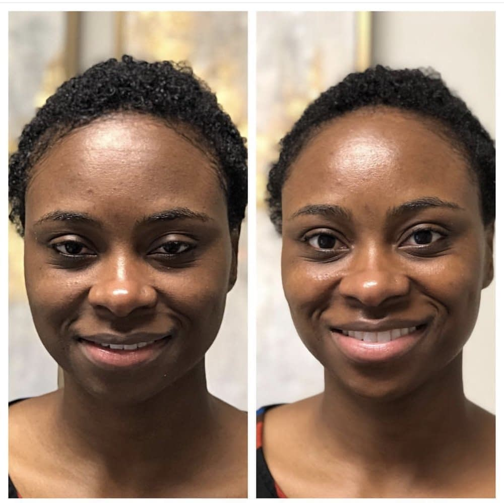 Charleston Hydrafacial Md Treatment - Before & After Results