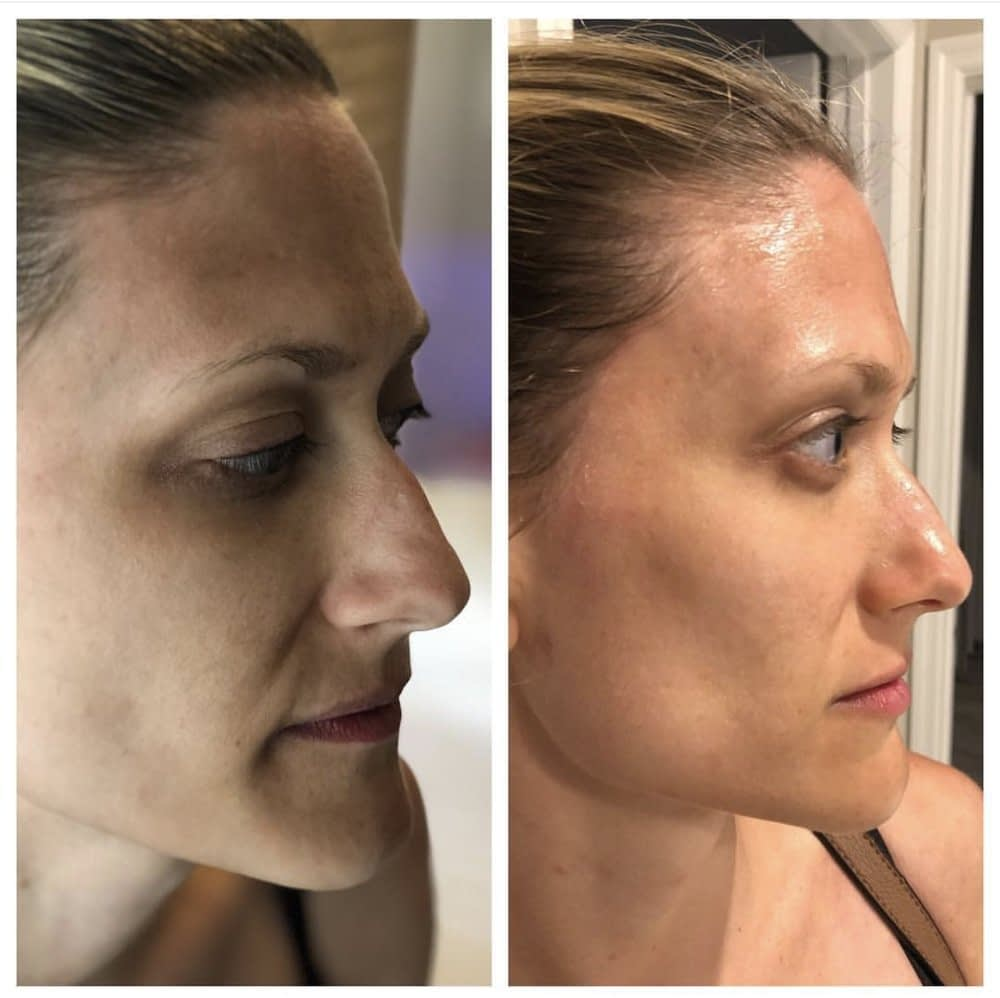 Reduced Appearance of Fine Lines and Wrinkles with HydraFacial