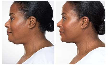 Kybella Injections for Reducing Double Chin