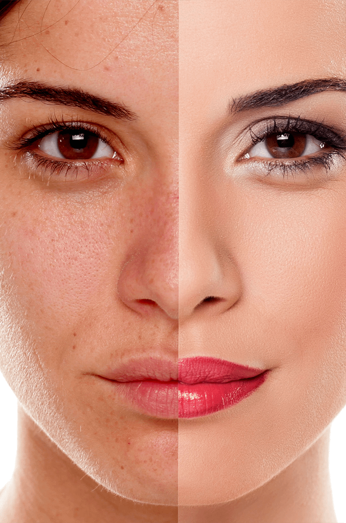 Collagen Regenerative Therapy For Removing Wrinkles