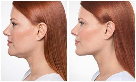 Get Rid of Double Chin with Kybella Injections