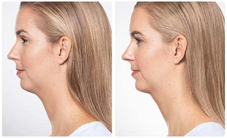Kybella - Customised Injectable Solution for Removing Chin Fat