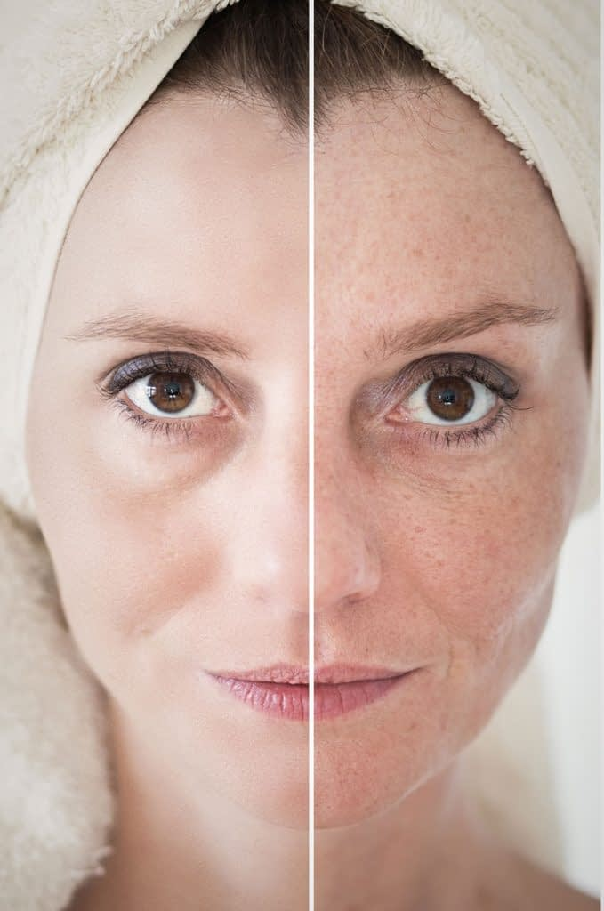 Chemical Peel Treatment for Removing Wrinkles & Acne