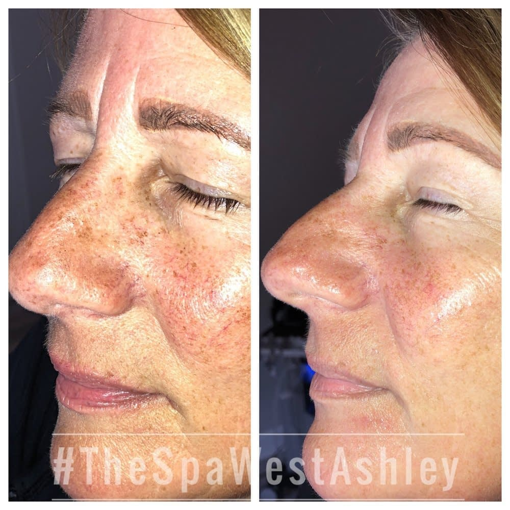 Check Out The Before & After Results of Skin Treatment