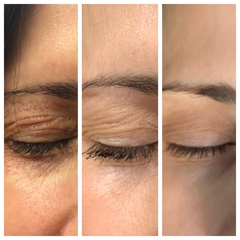 Plasma Pen Fibroblasting For Reducing Wrinkles