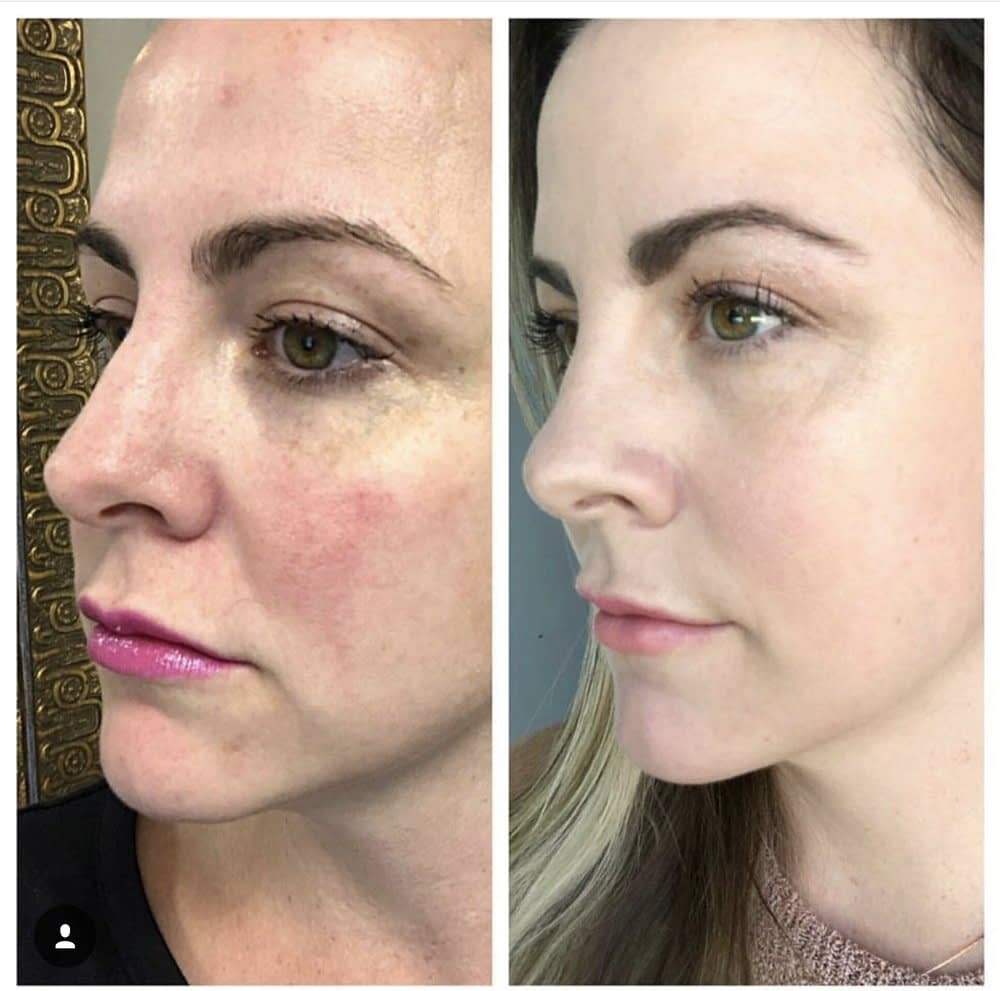 Get Long-Lasting Results with Our Effective Skin Care Treatment