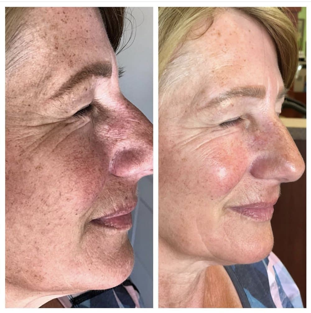 Remove Scars & Acne with Effective HydraFacial Treatment
